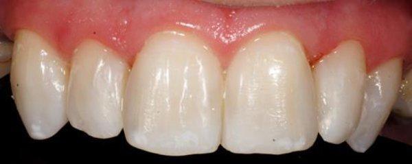 Blanqueamiento_Dental_Despues.jpg