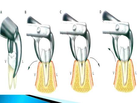 Exodoncia, ¿qué es y cuando se aplica?