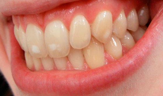 las manchas blancas en los dientes de los niños centro dental parc