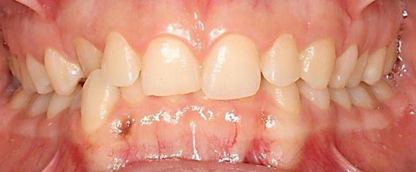 Tratamiento_de_Ortodoncia_y_Carillas_de_Composite_Antes.jpg
