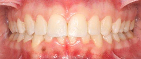 Tratamiento_de_Ortodoncia_y_Carillas_de_Composite_Despues.jpg