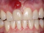 Abceso dental. ¿Qué es y sus síntomas?
