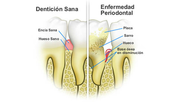 ¿Qué es la bolsa periodontal?