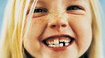 5 consejos para cuidar los dientes de nuestros hijos