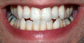 Qué es el contorneado estético dental