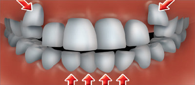 Dentadura mal alineada, ¿qué riesgos conlleva?