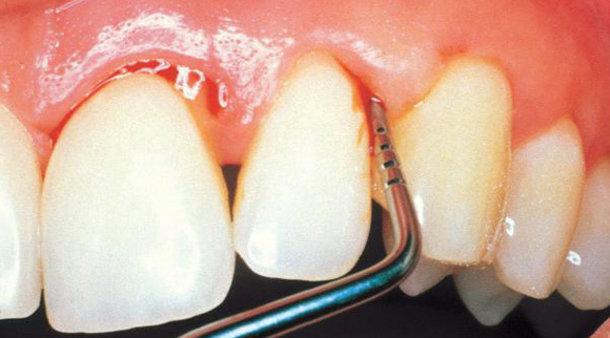 Enfermedades periodontales ¿Qué hay que saber?