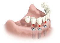 ¿Qué protesis o piezas dentales se colocan sobre los implantes?: Foto #2