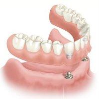 ¿Qué protesis o piezas dentales se colocan sobre los implantes?: Foto #1