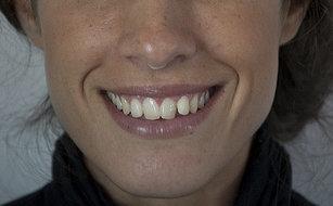 Carillas dentales y blanqueamiento dental para unos dientes más blancos