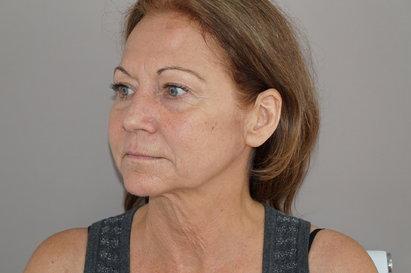 The Liquid Facelift - Vesiavusteinen kasvojenkohotus on hellävaraisempi vaihtoehto: Kuva #1