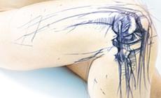 Ortopedia - Richard Wolf