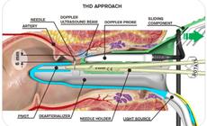 Peräpukamien kirurginen hoito ja muu proktologia