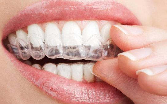 blanqueamiento dental remedios naturales